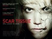 scar tissue 1